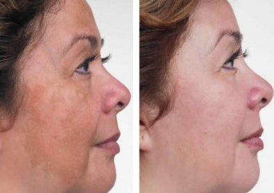 Melalite Forte hydroquinone 4% cream USP before and after